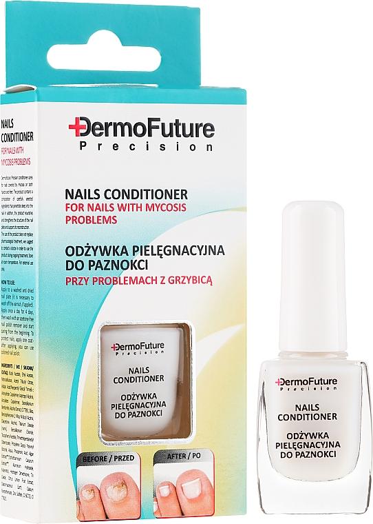 Antimykotische Nageltherapie - DermoFuture Course Of Treatment Against Nail Fungus